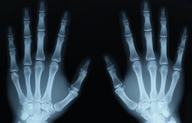 Razele X sunt folosite in medicina